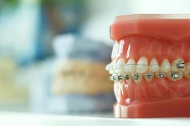 日本矯正歯科学会認定医による治療